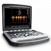 УЗИ аппарат Chison Sonotouch 80 (SonoBook 8)